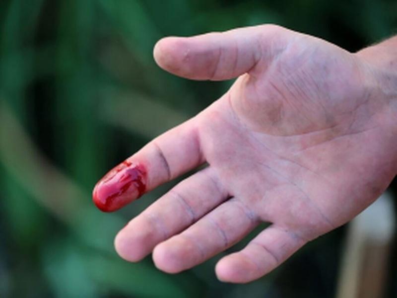 Chiêm bao thấy có người bị đứt tay chảy máu đến chết