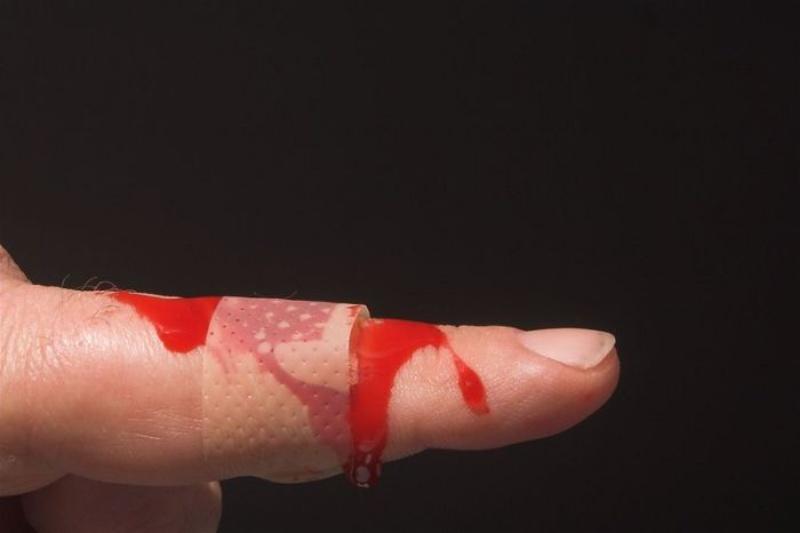 Ngủ mơ thấy mẹ bị đứt tay chảy máu chốt nhanh cặp số 67 - 64